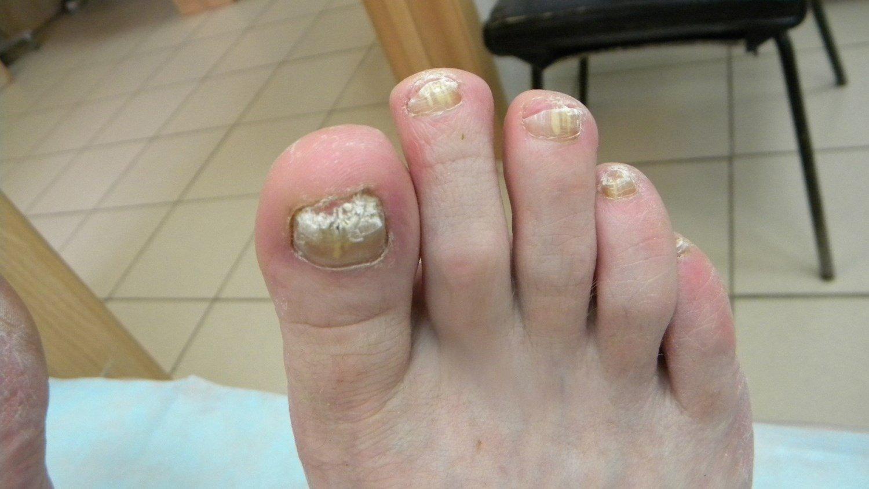 Что делать если на ногтях образовался грибок