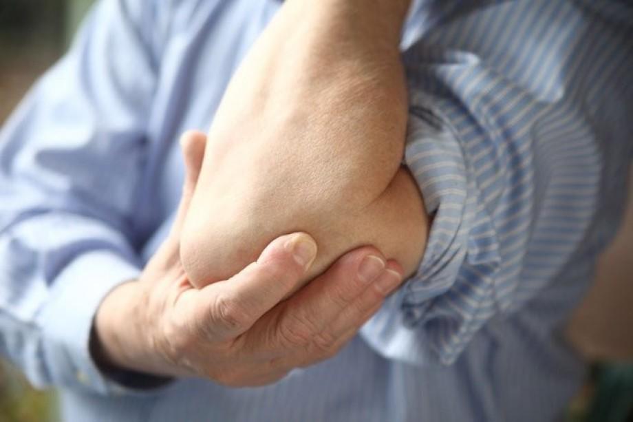 Заболевание Артрит Симптомы И Лечение