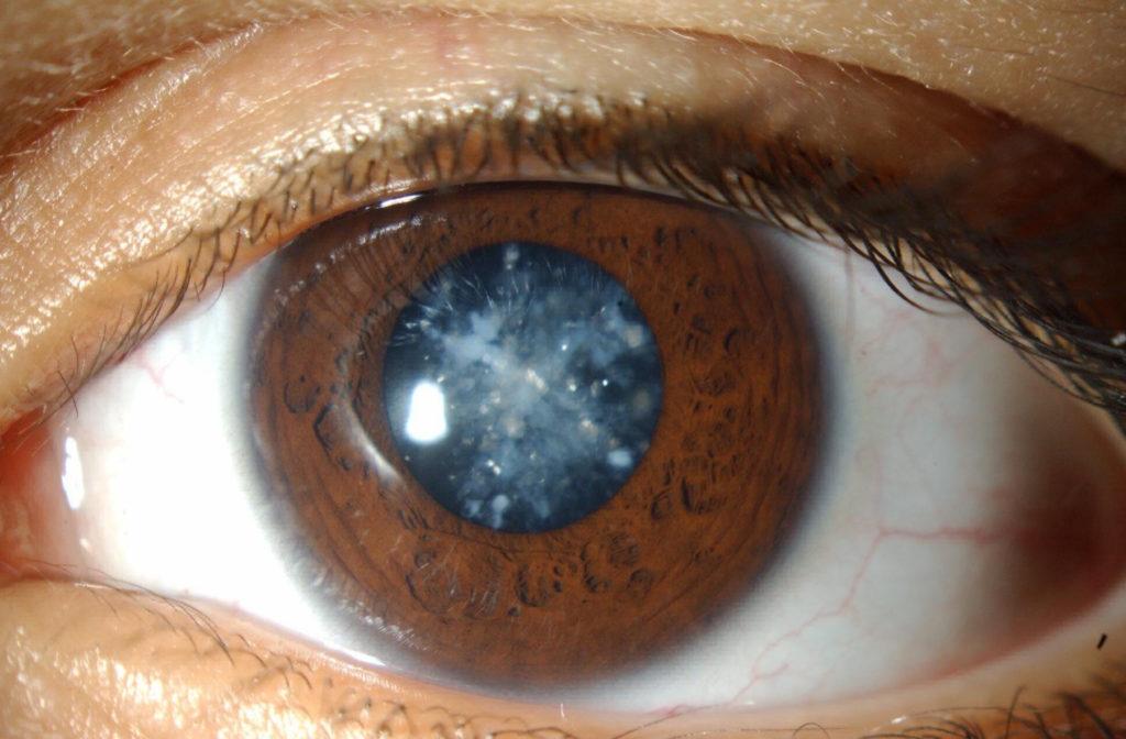 Потеря зрения при сахарном диабете и лечение